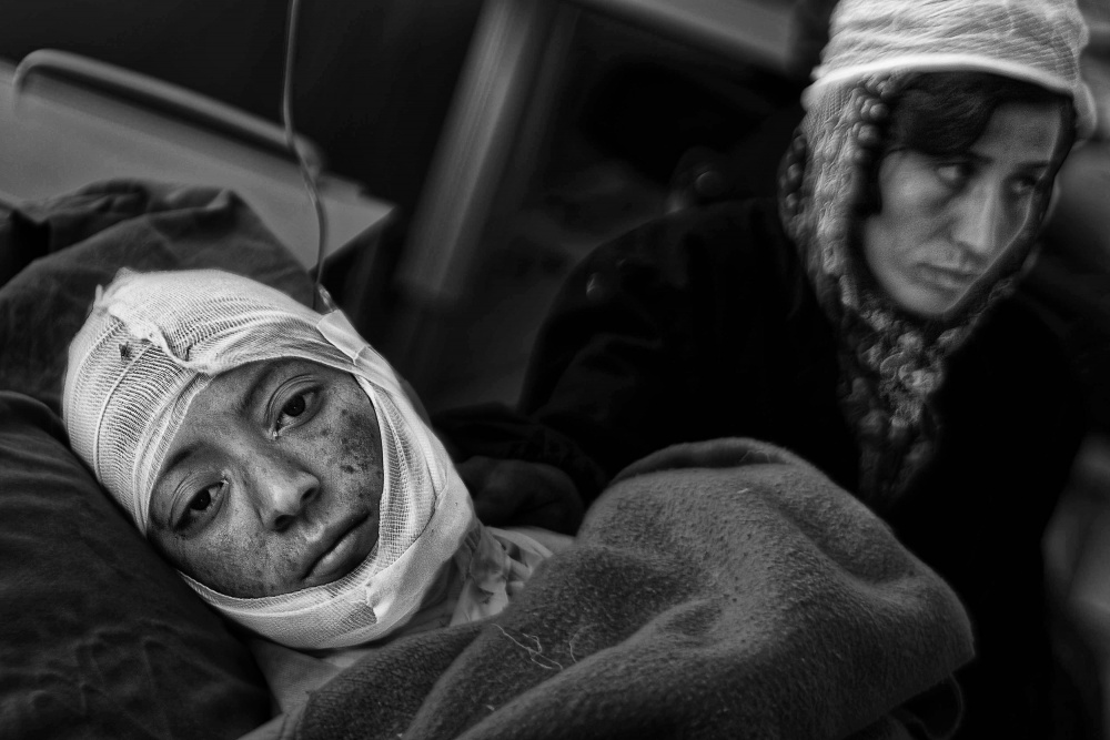Afghanistan, ospedale Burning Centre di Herat dove vengono accolte le donne e i bambini ustionati - The woman tragedy of self-immolation in Afghanistan